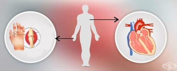 Ревматоиден артрит със засягане на други органи и системи МКБ M05.3 - изображение