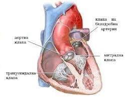 Ревматизъм със засягане на сърцето МКБ I01 - изображение