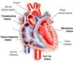 Ревматична аортна инсуфициенция МКБ I06.1 - изображение