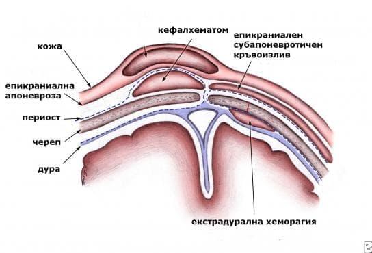 Родова травма на окосмената част  на главата МКБ P12 - изображение