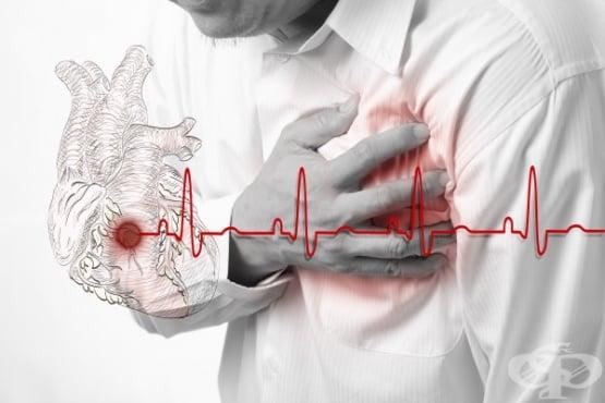 Сърдечна недостатъчност МКБ I50 - изображение