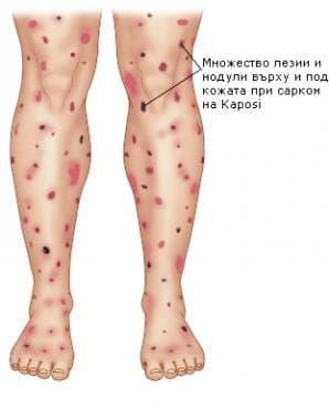 Сарком на Kaposi на кожата МКБ C46.0 - изображение