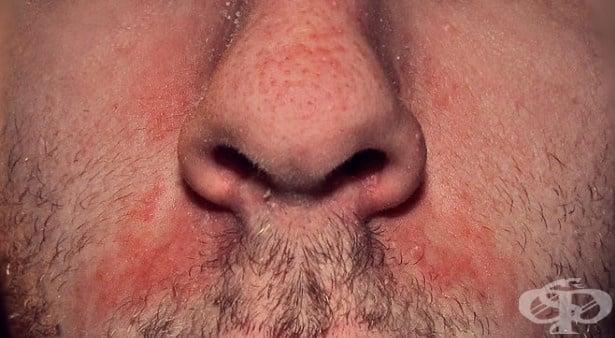 Себореен дерматит МКБ L21 - изображение