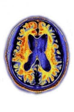 Сенилна дегенерация на главния мозък, некласифицирана другаде МКБ G31.1 - изображение