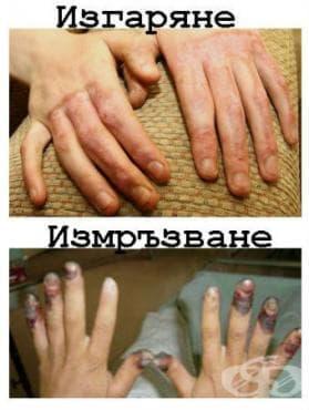 Последици от термични и химични  изгаряния, и измръзване МКБ T95 - изображение