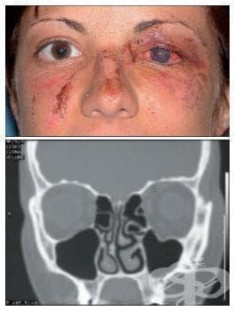 Последици от травма на окото и околоочната област МКБ T90.4 - изображение