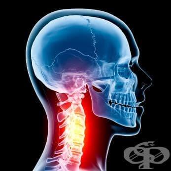 Шийночерепен синдром МКБ M53.0 - изображение