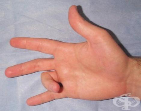 Щракащ пръст МКБ M65.3 - изображение