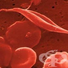 Сърповидно-клетъчна анемия с криза МКБ D57.0 - изображение