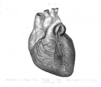 Сифилис на сърдечно-съдовата система МКБ A52.0 - изображение