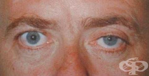 Синдром на Horner МКБ G90.2 - изображение