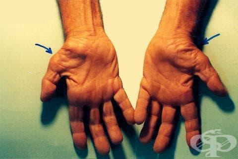 Синдром на карпалния канал МКБ G56.0 - изображение