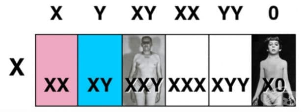 Синдром на Klinefelter, мъж с повече от две Х хромозоми МКБ Q98.1 - изображение