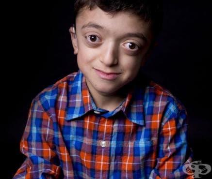 Синдроми на вродени аномалии с предимно засягане на лицевата област МКБ Q87.0 - изображение
