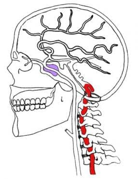 Синдром на притискане на вертебралните и предните спинални артерии (G99.2*) МКБ M47.0 - изображение