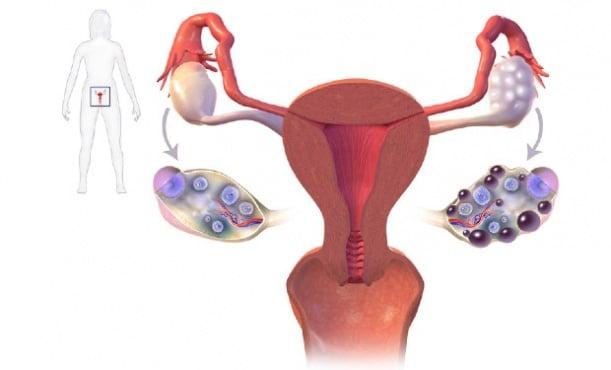 Синдром на поликистоза на яйчниците МКБ E28.2 - изображение