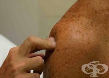 Синдром на удареното рамо МКБ M75.4 - изображение