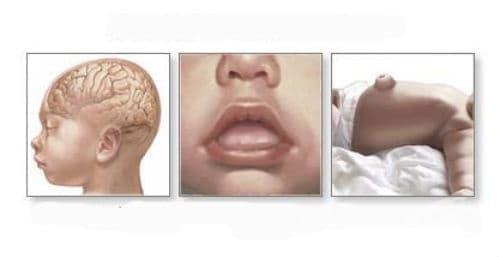 Синдроми на вродени аномалии, които се характеризират предимно с развитие на висок ръст [гигантизъм] МКБ Q87.3 - изображение