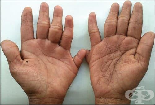 Синдроми на вродени аномалии със засягане предимно на крайниците МКБ Q87.2 - изображение