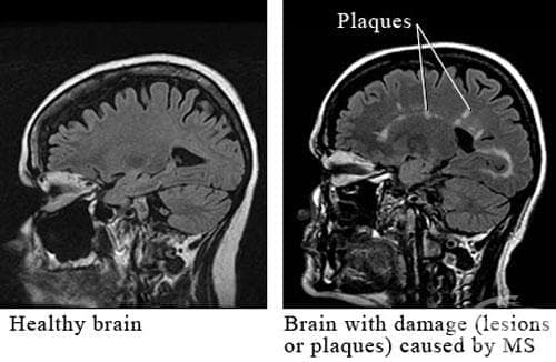 Системна склероза, неуточнена МКБ M34.9 - изображение
