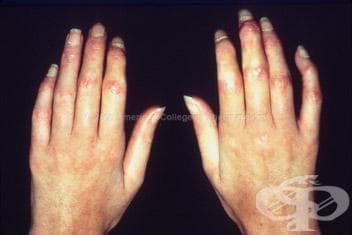 Системна склероза, предизвикана от лекарствени средства и химични продукти МКБ M34.2 - изображение
