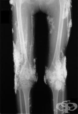 Ювенилен дерматомиозит МКБ M33.0 - изображение