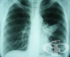 Слузно-гноен хроничен бронхит МКБ J41.1 - изображение
