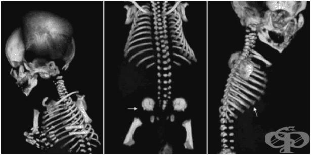 Спондилоепифизарна дисплазия МКБ Q77.7 - изображение