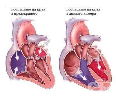 Други болести на сърцето МКБ I30-I52 - изображение