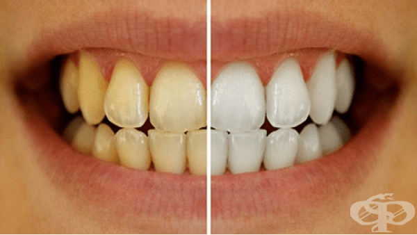 Други нарушения в развитието на зъбите МКБ K00.8 - изображение