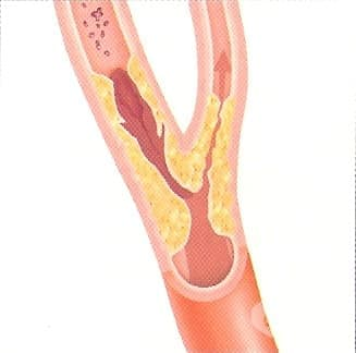 Оклузия и стеноза на каротидна артерия МКБ I65.2 - изображение