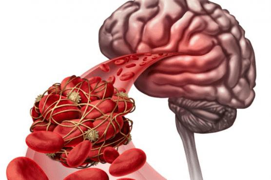 Съдова деменция МКБ F01 - изображение