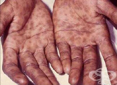 Вторичен сифилис на кожата и лигавиците МКБ A51.3 - изображение