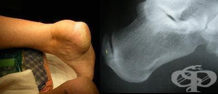 Тендинит на ахилесовото сухожилие МКБ M76.6 - изображение