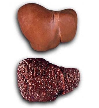 Токсично увреждане на черния дроб с фиброза и цироза на черния дроб МКБ K71.7 - изображение