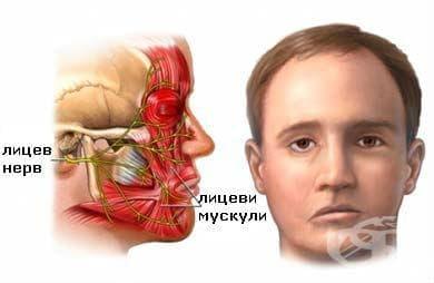 Травма на лицевия нерв МКБ S04.5 - изображение