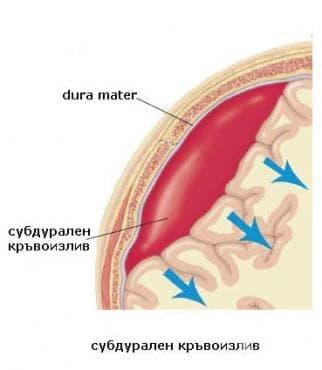 Травматичен субдурален кръвоизлив МКБ S06.5 - изображение