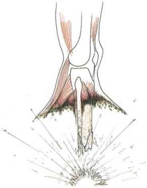 Травматична ампутация на подбедрицата МКБ S88 - изображение
