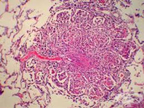 Туберкулоза на белите дробове, потвърдена хистологично МКБ A15.2 - изображение