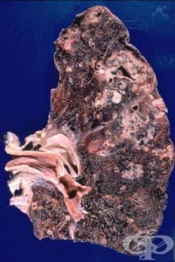 Туберкулоза на белите дробове, потвърдена с неуточнени методи МКБ A15.3 - изображение