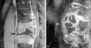 Туберкулоза на гръбначния стълб (А18.0ї) МКБ M49.0 - изображение