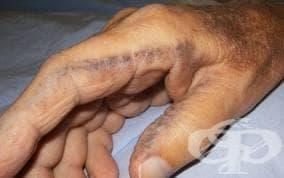 Разстройства на обмяната на тирозина МКБ E70.2 - изображение
