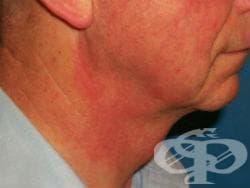 Контактен дерматит от козметични средства, неуточнен МКБ L25.0 - изображение