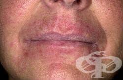 Контактен дерматит от храни при контакта им с кожата, неуточнен МКБ L25.4 - изображение