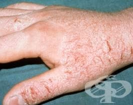 Неуточнен контактен дерматит от неуточнена причина МКБ L25.9 - изображение