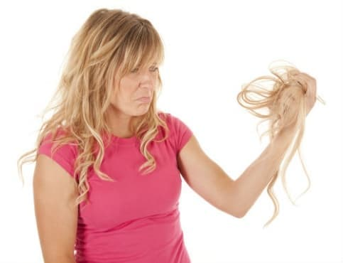 Други уточнени нецикатризиращи форми на опадане на косата МКБ L65.8 - изображение