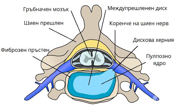Увреждане на междупрешленните дискове в шийния отдел с радикулопатия МКБ M50.1 - изображение