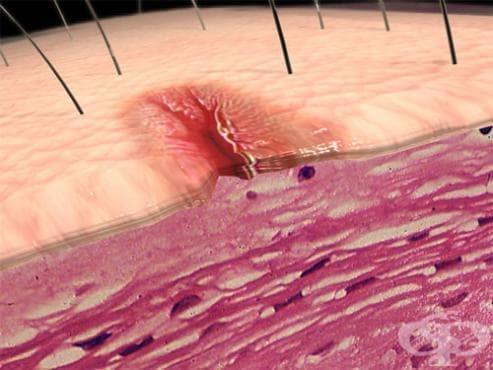 Други увреждания на меките тъкани,  некласифицирани другаде МКБ M79 - изображение