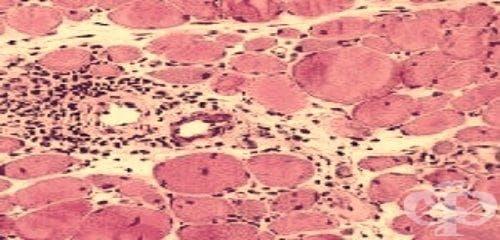 Други мускулни увреждания при болести, класифицирани другаде МКБ M63.8 - изображение