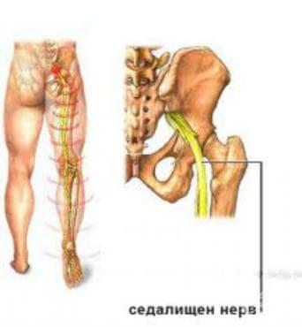 Увреждане на седалищния нерв МКБ G57.0 - изображение